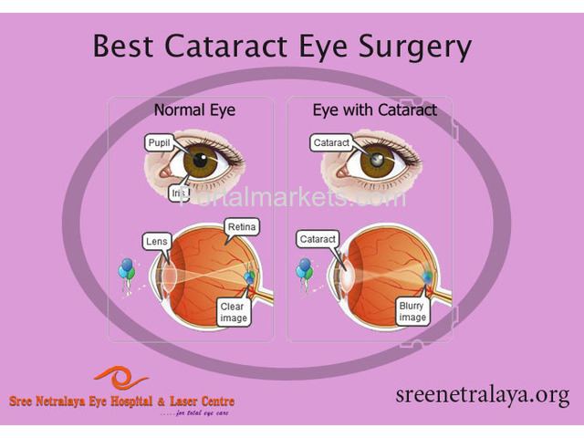 Cataract eye surgery | Cataract surgeries in Dilsukhnagar | - 1/2