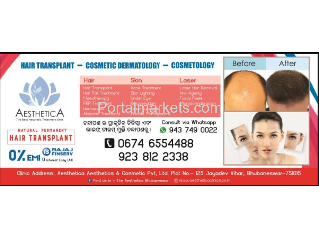 Best hair transplant in Odisha - 2/2