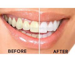 Teeth scaling in best dental hospital Hyderabad