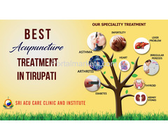 Acupuncture is the natural way of healing all the diseases