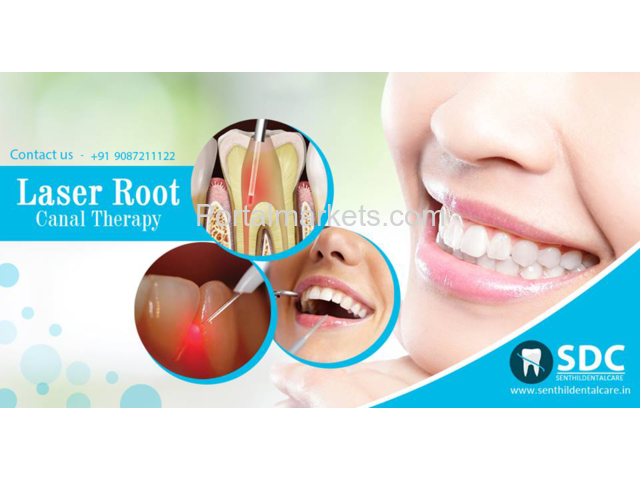 Dental Laser Treatment, Laser Root Canal Treatment Cost In Chennai - 1/1