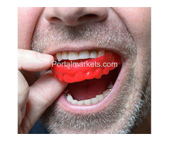 Recommended Dental Mouth Guards Waterloo ON- N2K 4P2 - Bayley Dental