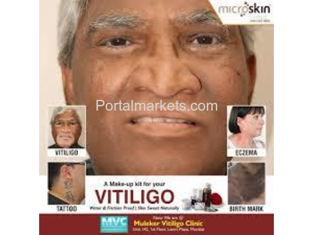 Microskin - Vitiligo Makeup Cream | Best Vitiligo Treatment in India. - 2/2