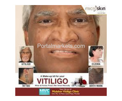 Microskin - Vitiligo Makeup Cream | Best Vitiligo Treatment in India. - Image 2/2