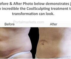 CoolSculpting Fat Treatment - To Reduce The Fat