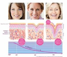 Know About Venus Legacy Treatments - How It Works