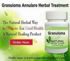 Buy Herbal Product for Granuloma Annulare Online